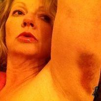 Me Arm Bruise